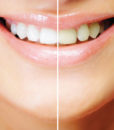 tooth-whitening-smile_no-words